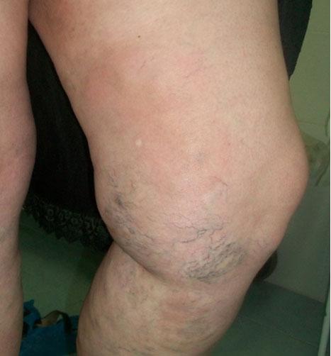 Внутренний варикоз на ногах после родов