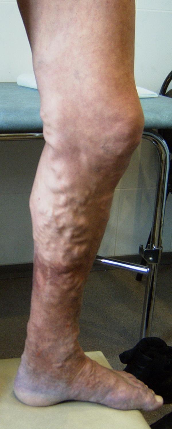 Лечение варикоза в Орле лазером – цены, отзывы