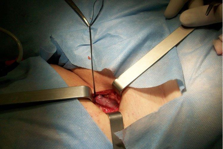 Цена на операции варикоз
