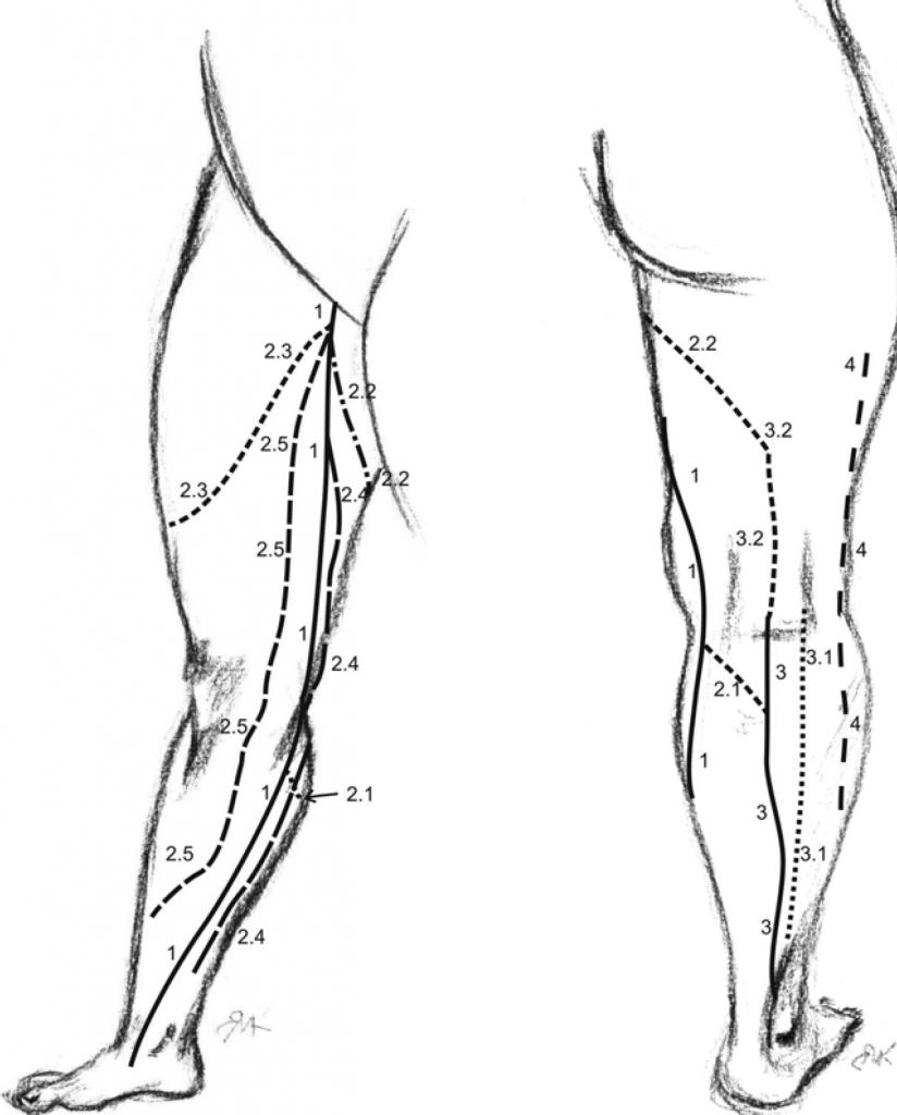 Проявления варикоза на ногах