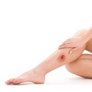 Трофическая язва: гнойно-некротическая рана на коже, часто возникающая при прогрессировании варикоза